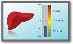 Fibrotest: инновационные диагностирования заболеваний печени - медики Израиля