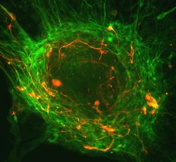 Биологи заменят нейроны
