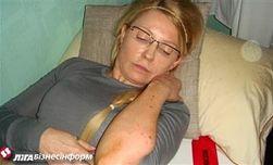 Тимошенко сама себя избила