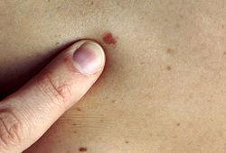 Несмотря на риск заполучить рак кожи, загорать всё-таки полезно – медики