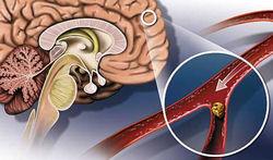 Атеросклероз – проблема не современного образа жизни, им страдали и фараоны