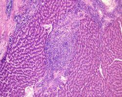 Раскрыт механизм влияния ожирения на возникновение рака печение