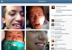 Скандальный Алексей Дурнев выбил зубы ударом о водный мотоцикл