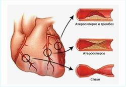 Ишемическая болезнь сердца в пожилом возрасте опаснее для женщин