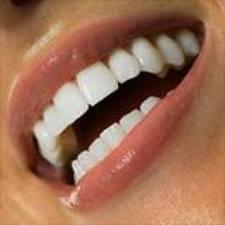 Стоматологи теперь смогут заменить отсутствующие зубы новыми